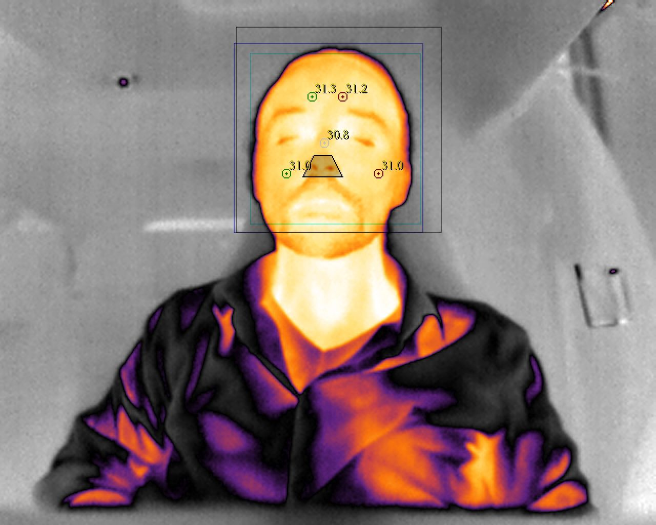 Infrared image of a driver's heat stress in a car