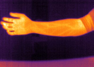 thermal infrared vision applications : medical - veins analysis